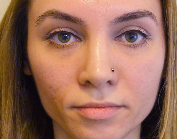 After-Full Face Rejuvenation