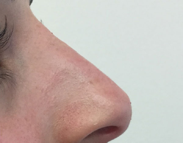 After-Nose Correction