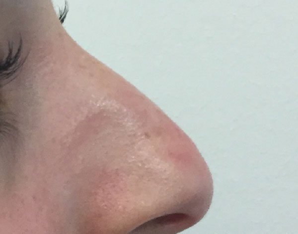 Before-Nose Correction